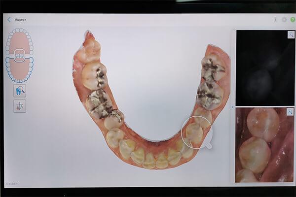 歯の状態を細かくチェックすることができます