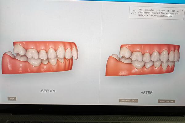 矯正も付属ソフトのAIを使ってシュミレーションすることができるので、矯正治療の結果がイメージしやすくなります。